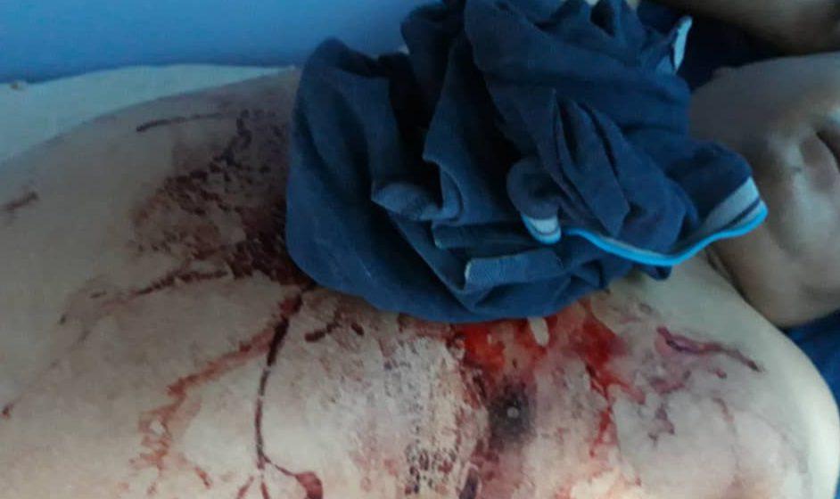 Pegawai AADK cedera ditikam di Sibu
