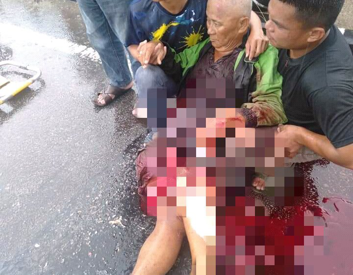 Warga emas cedera parah dilanggar kereta, diheret lori di Mukah