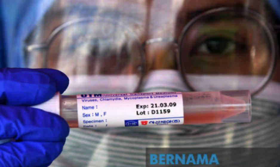 COVID-19: Malaysia catat dua kes baharu, terendah sejak PKP – KP Kesihatan